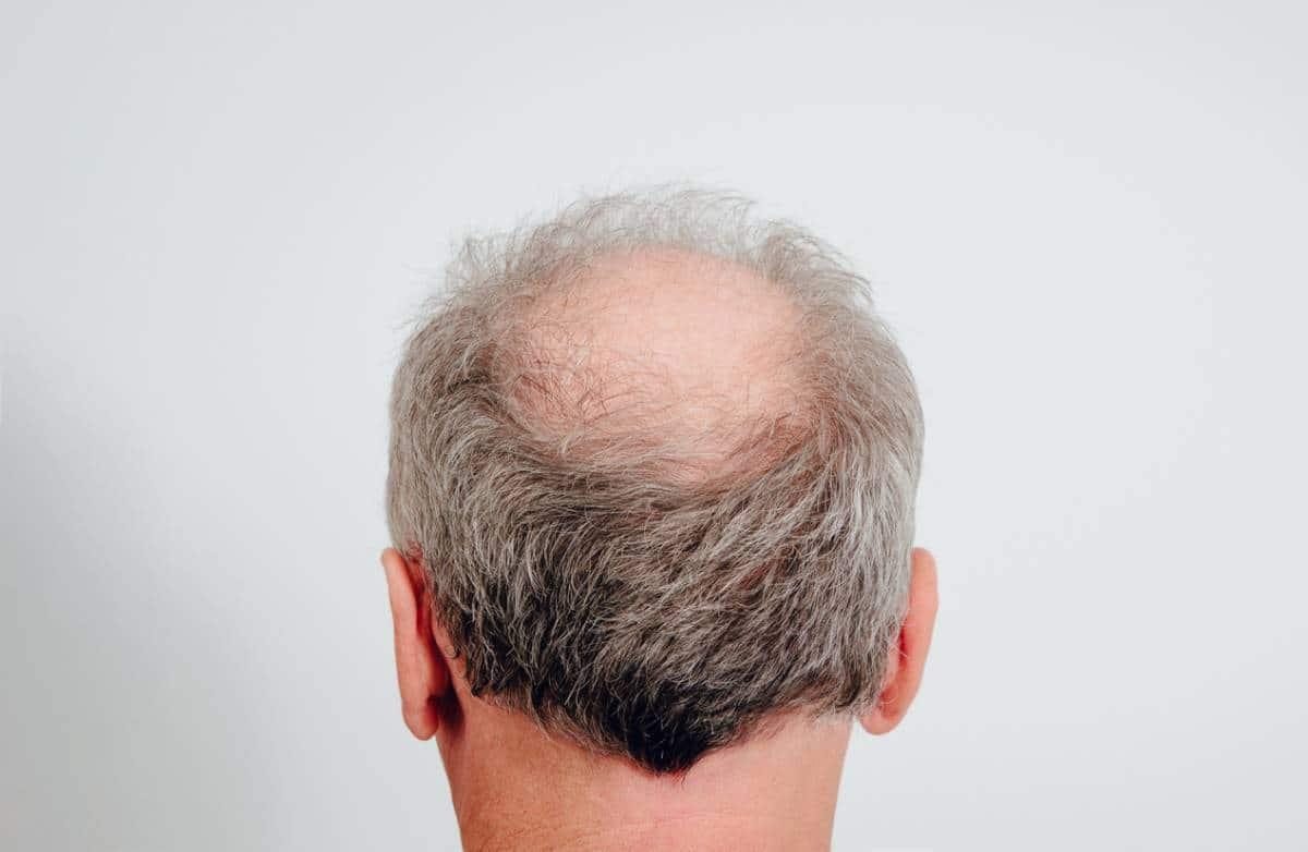 Quelles sont les causes de la perte de cheveux chez un homme et comment y remédier ?