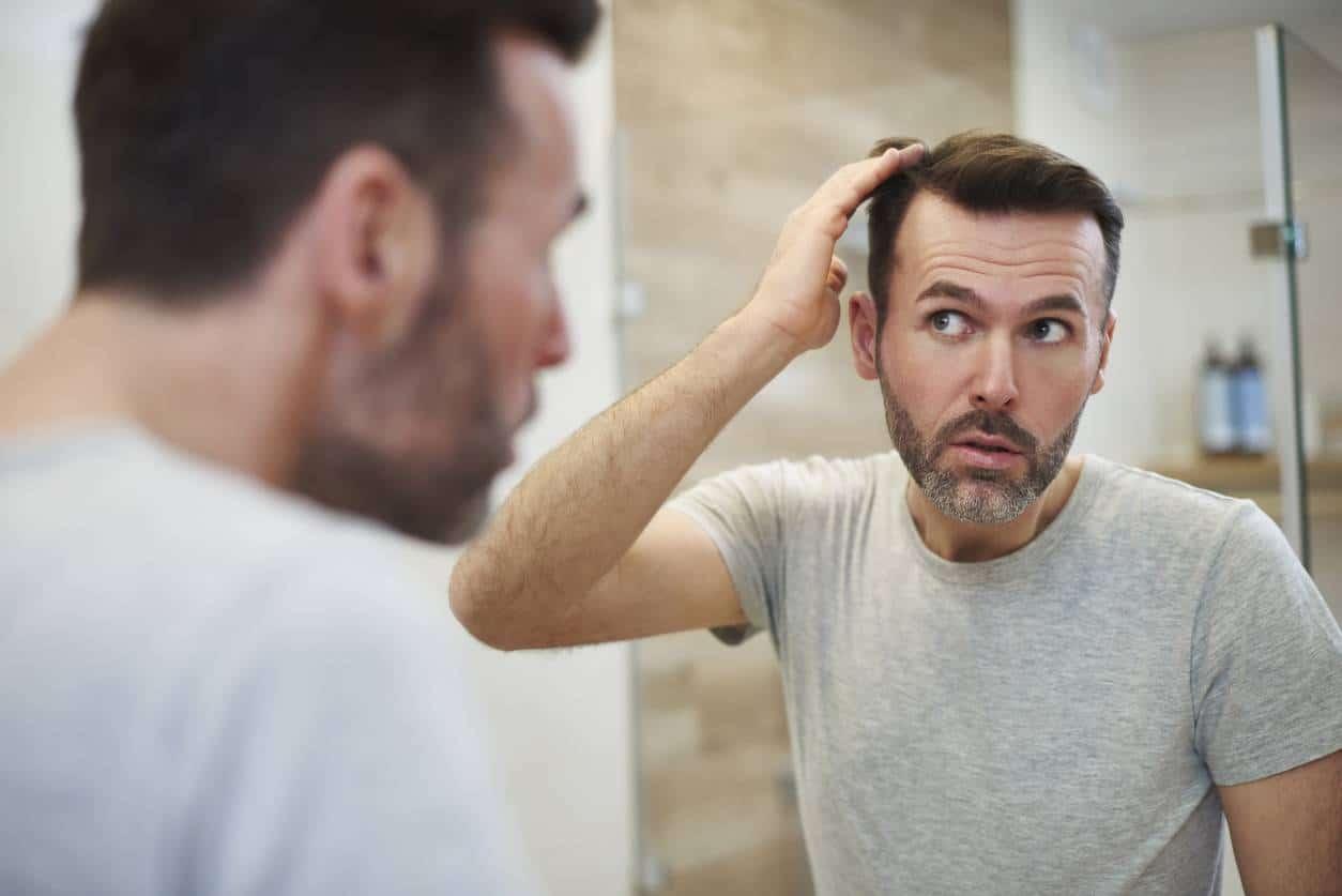 perruque comme solution à perte de cheveux